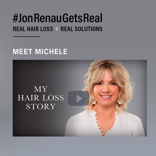 Female Non Surgical Hair System