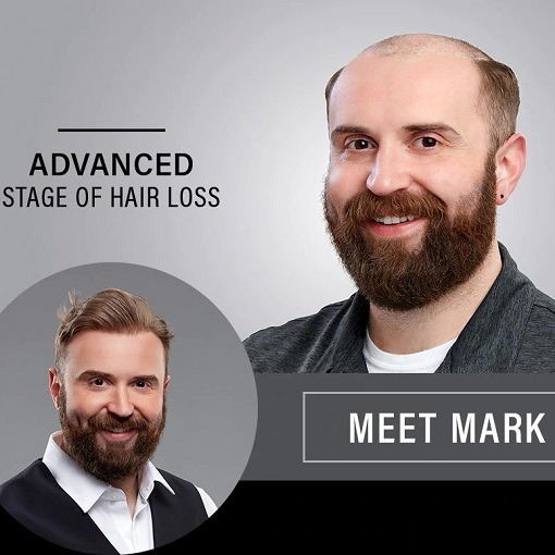 Cheveux Homme – The Type of Hair Replacement You Need.